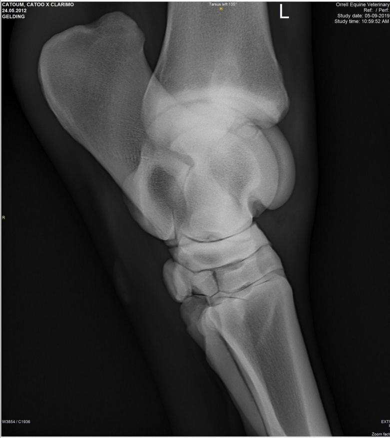 X-ray-00-(4)