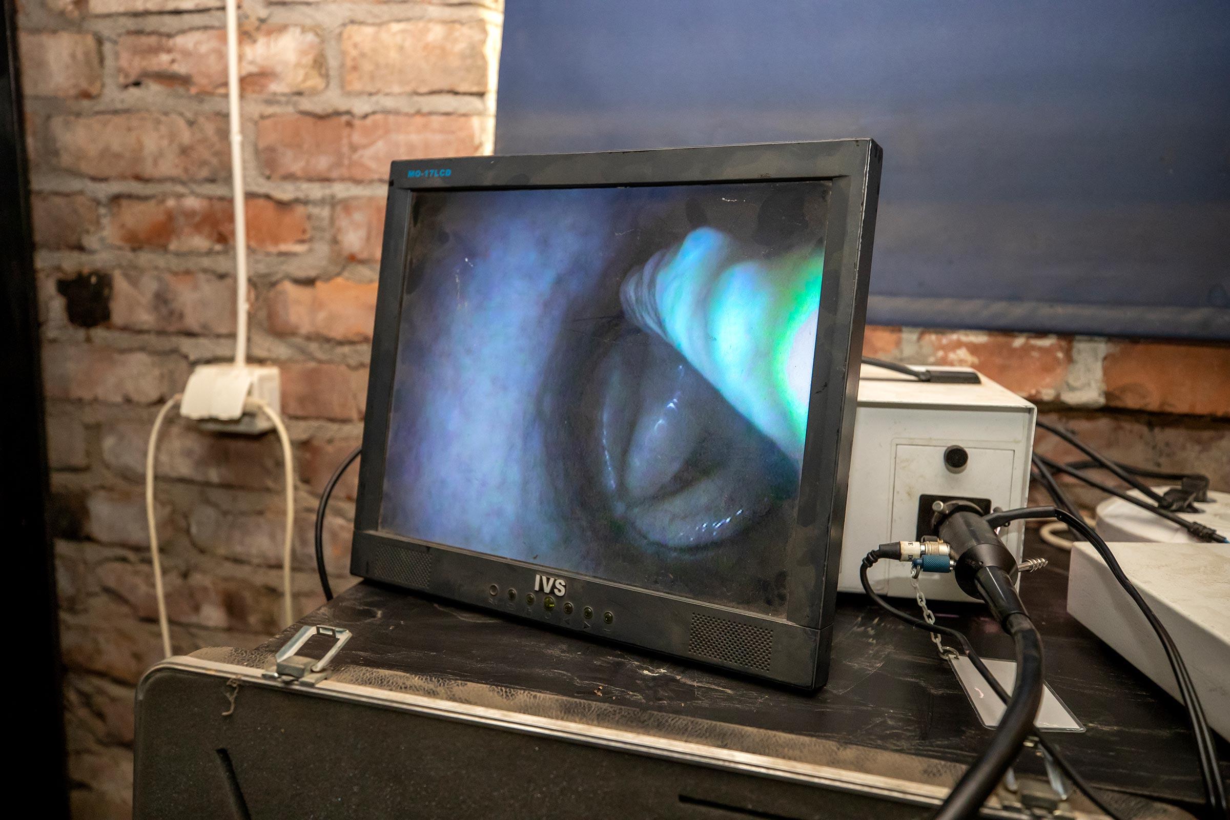 Endoskopi-4-200818-rt