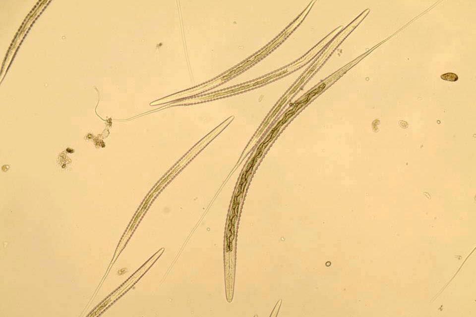 S.vulgaris-l3-larv